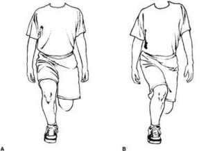 Correct and incorrect single squat test