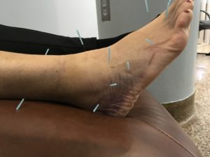 acupuncture on ankle